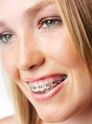 Zoucheng Adult Braces - Zoucheng Adult Orthodontics Guide