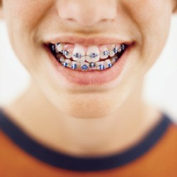 Ziyang Kids Braces - Ziyang Boys and Girls Braces Guide