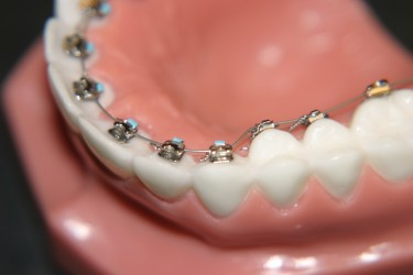 Lingual Braces - Lingual Orthodontics Guide