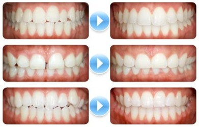 Xinhui Orthodontics Cost - Xinhui Orthodontics Prices