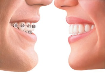 Kaiyuan (Liaoning) Orthodontics Insurance - Kaiyuan (Liaoning) Dental Insurance Guide