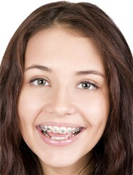 Teen Braces - Young Adults Braces Guide