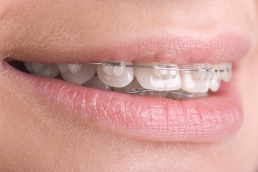 Teeth Braces - Dental Braces Guide